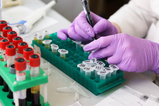 Test bacterii