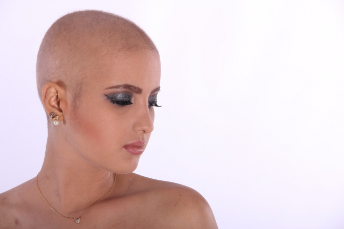 LIpsa unor vitamine și minerale cauzează pierderea părului