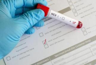 Tratamentul fără interferon pentru Hepatita C