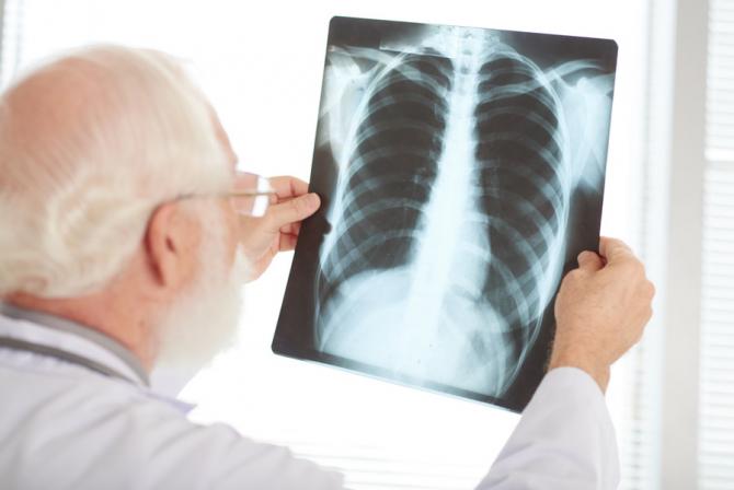 Banii primiţi de la Fondul Global va fi evaluată şi revizuită Strategia Naţională de Control al Tuberculozei în România 2015 - 2020,