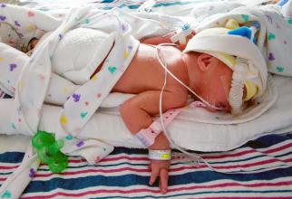 Se nasc prematur din ce în ce mai mulți copii