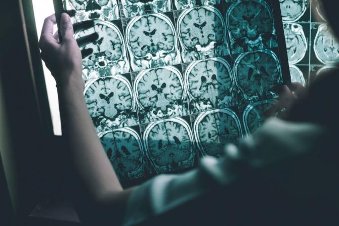 Noul coronavirus a fost descoperit și în țesutul creierului