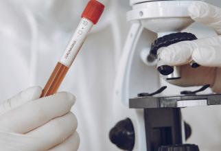 Majoritatea statelor UE NU vor să suporte costurile testelor PCR pentru certificat verde digital