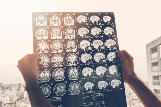 O treime din pacienți au înregistrat encefalopatii