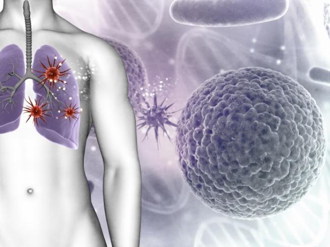 Soluție radicală pentru pacienții cu plămânii afectați de boală