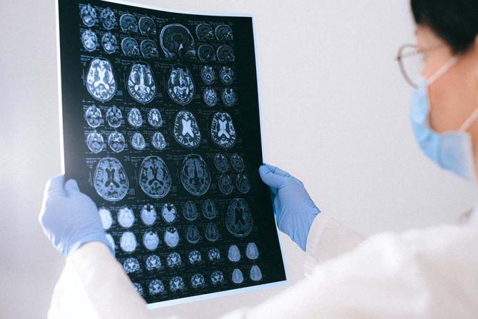 Medicii au descoperit că și cei mici pot suferi forme extrem de grave