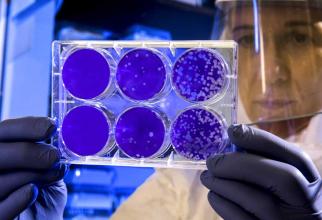 Studiul in vitro este unul foarte încurajator