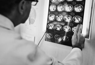 Experții au aflat de ce bolnacii de covid își pierd mirosul și gustul